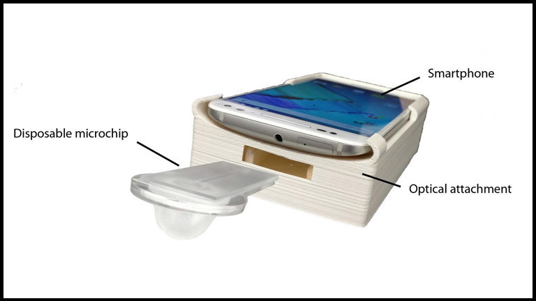 Erweiterungs-Kit für Smartphone zum Analysieren von Spermien