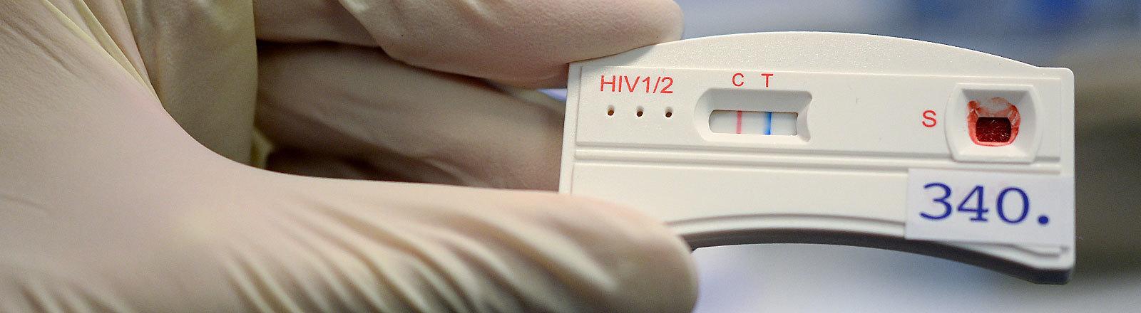 Der Teststreifen an einem HIV-Schnelltest verfärbt sich am 15.11.2016 in Berlin bei der Berliner Aids-Hilfe e.v. nach der Anwendung mit dem Blut eines jungen Mannes.