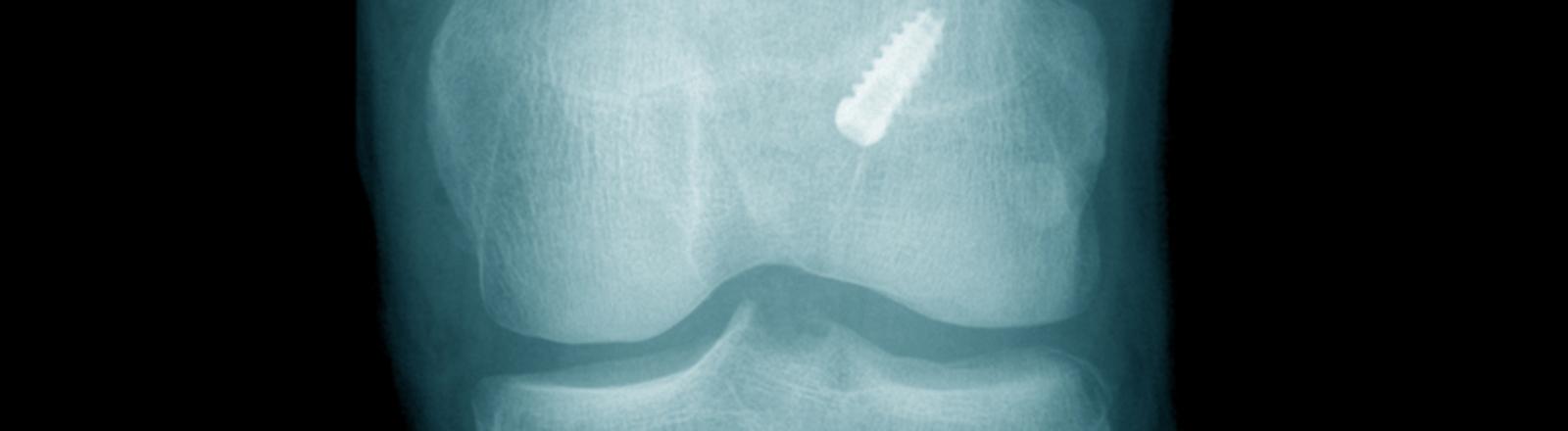 Das Bild zeigt die Röntgenaufnahme eines Kreuzbandes nach einer Operation.
