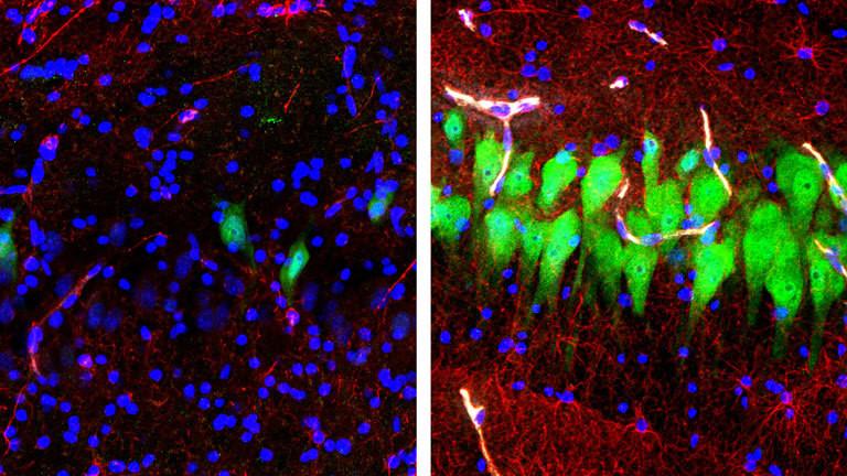 Linkes Bild: Die Aktivität eines Schweinhirns nachdem es zehn Stunden tot ist. Rechtes Bild: Die Nervenzellen (grün) sind nach der Behandlung mit der Perfusionsmaschine deutlich aktiver.
