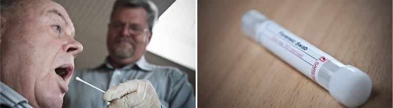 Genetischer Fingerabdruck: Speichelentnahme und Speichelprobe