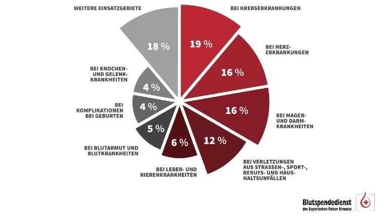Eine Grafik, wofür Blutspenden benötigt werden