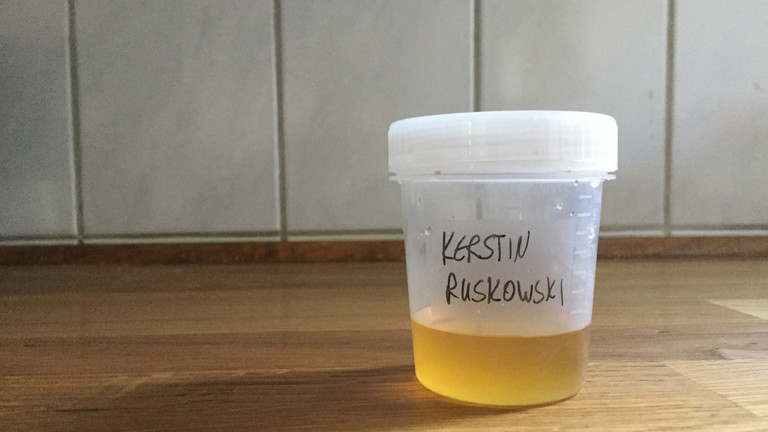Urinprobe von Kerstin Ruskowski