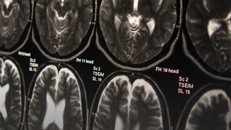 Eine Kernspintomografie-Aufnahme eines Gehirns.