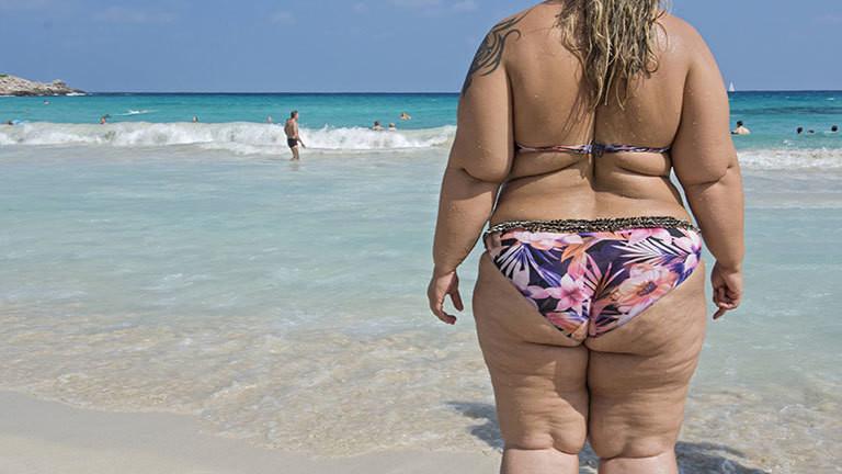 Eine sehr übergewichtige Frau im Bikini