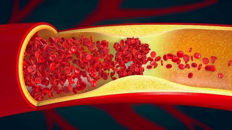 Eine Grafik einer Thrombose