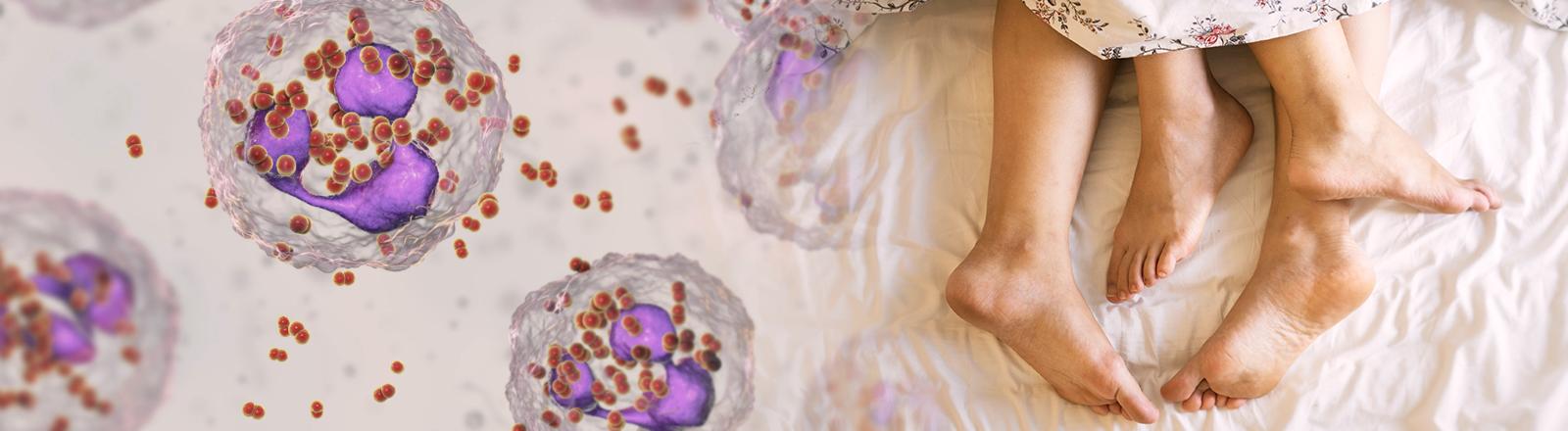 Collage: zwei Füße im Bett und Mikroskop-Aufnahme von Tripper-Bakterien