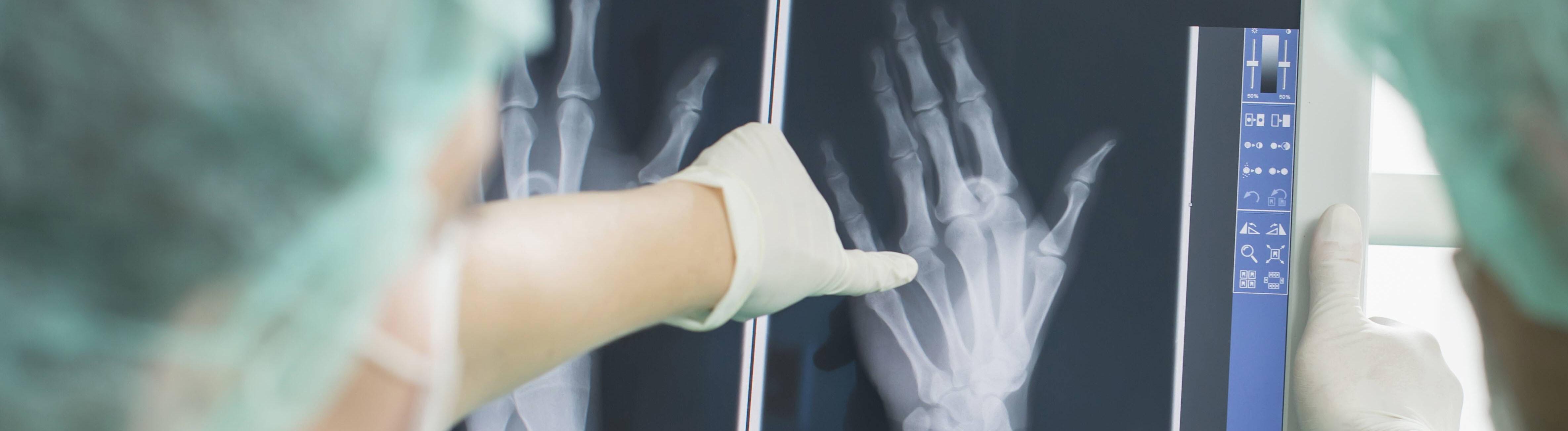 Zwei Chirurgen, die die Röntgenaufnahme einer Hand begutachten.