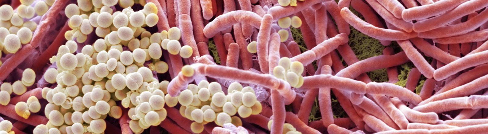 Bakterien auf einem Mobiltelefon mikroskopisch vergrößert